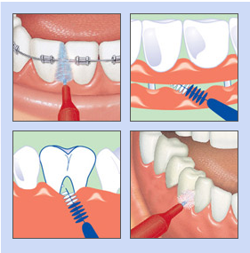 interdentalbuersten zahnpflege